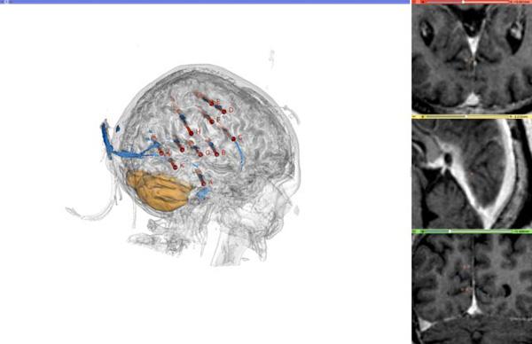 Imagen de una implantación de electrodos profundos