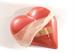 Dèficit de ferro en pacients amb insufìciència cardíaca: avenços en el tractament per la millora dels símptomes i qualitat de vida